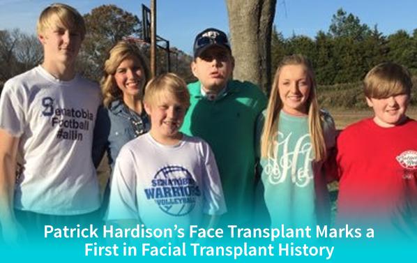 patrick-hardison-face-transplant-banner