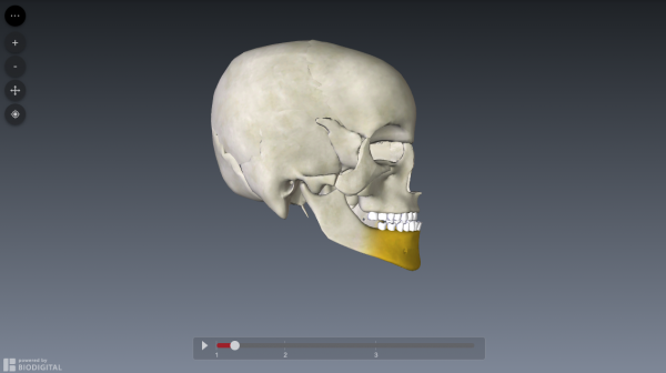 bilateral-sagittal-split-osteotomy-simulation1