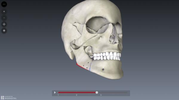 bilateral-sagittal-split-osteotomy-simulation2