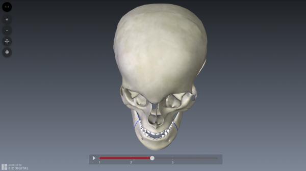 bilateral-sagittal-split-osteotomy-simulation3