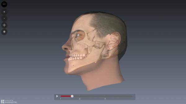 bilateral-sagittal-split-osteotomy-simulation4